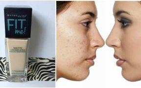 Foundation to cover acne scars